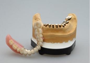 テレスコープ義歯の種類