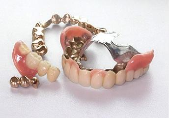 インプラント以外の選択肢〜テレスコープ義歯〜ドイツにおける新たな取り組み