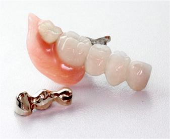 金属が見えず気づかれにくい部分入れ歯