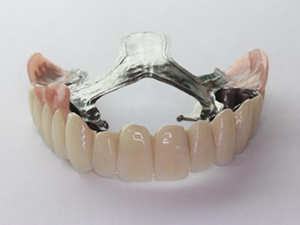入れ歯の種類