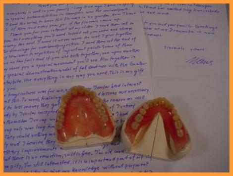 上下顎同時印象による総入れ歯