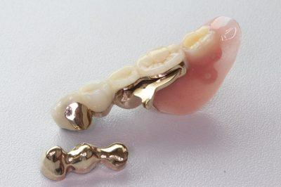 テレスコープの入れ歯