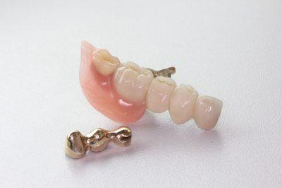 若い方にも合うテレスコープシステムの入れ歯