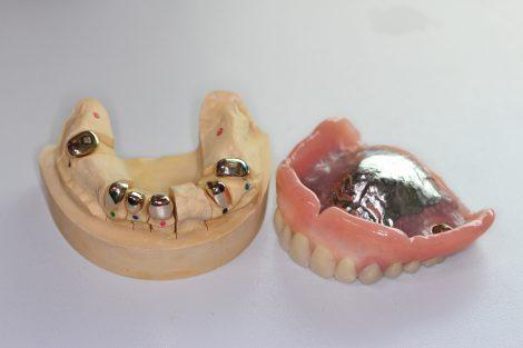 自分の歯は抜かずに、メンテナンスにより歯を守りながら使うことができるレジリエンツテレスコープ