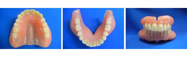 上下顎同時印象法による総入れ歯の費用