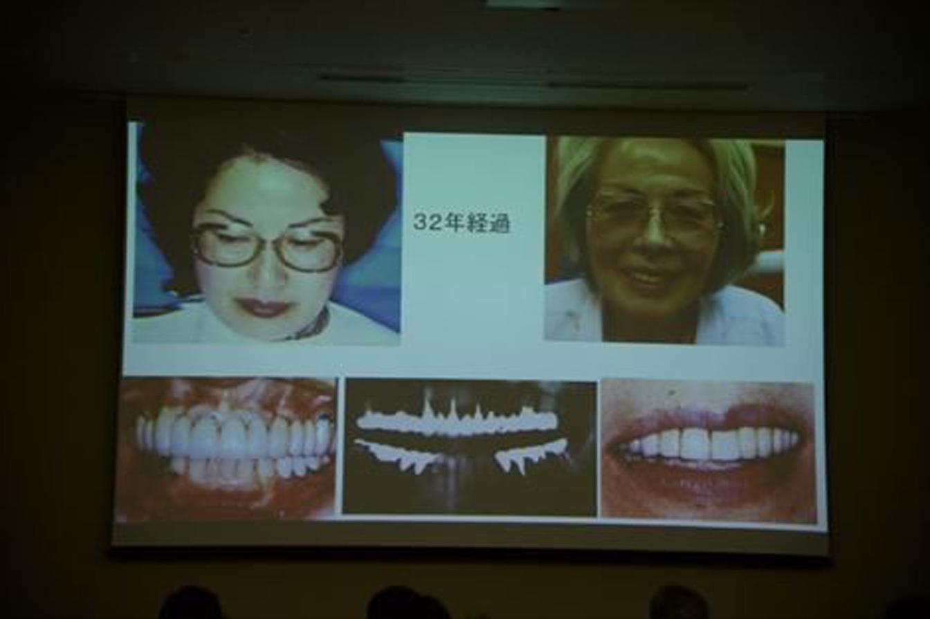 テレスコープ義歯の30年以上の症例