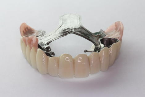 テレスコープ義歯による入れ歯の特徴
