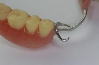 保険の入れ歯治療で使われるクラスプ義歯の見た目