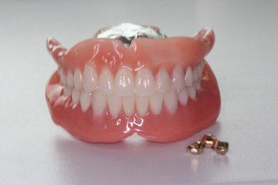 レジリエンツテレスコープは、笑顔の美しい口元を作ることができます