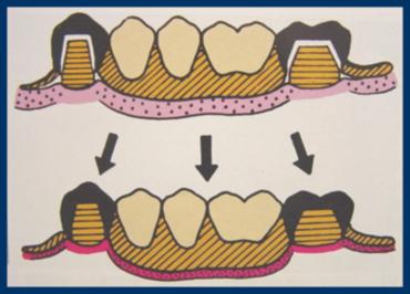 ほとんど残っている歯には負担がかかりません