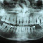 歯周病に有効な、ドイツ式入れ歯「リーゲルテレスコープ」17年経過しました