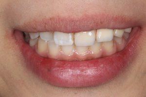20代女性の入れ歯2