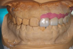 20代女性の入れ歯1
