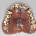 16年間使って頂いているドイツ式入れ歯、テレスコープ義歯