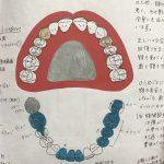 伊庭由夏先生の入れ歯治療の取り組み