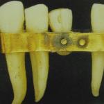 ドイツの入れ歯に用いられる金属の歴史