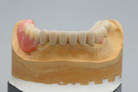 コーヌスクローネ義歯は安定している