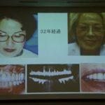テレスコープ義歯は何年使えるのでしょうか。