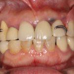 部分入れ歯のフックの針金を取りたいのですが、どのような方法がありますか?