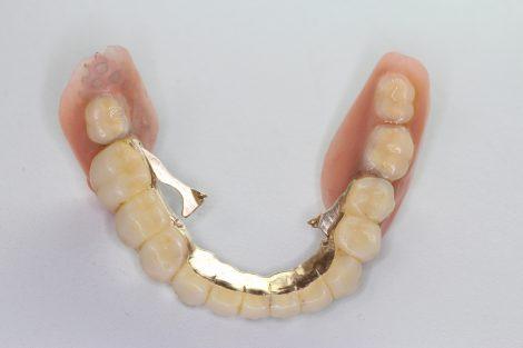 テレ スコープ 義歯