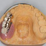 骨隆起を削らないと、入れ歯を作ることができないと言われた方へ