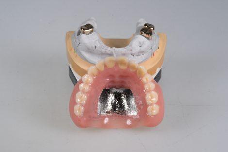総入れ歯になるタイミング
