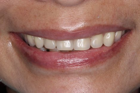 レジリエンツテレスコープによる美しい笑顔