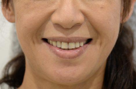 若い総入れ歯