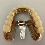前歯のさし歯が割れて抜歯〜部分入れ歯を考えたい〜