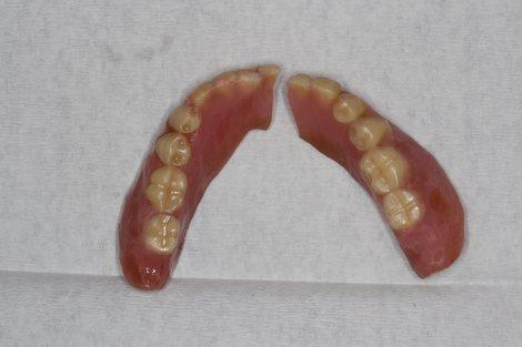 誤嚥性肺炎と入れ歯