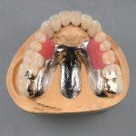 歯がぐらつき、噛むと痛みがある〜コーヌスクローネで治療した症例〜