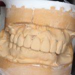 前歯のブリッジが斜めに下がって見える〜原因と治療方法について〜