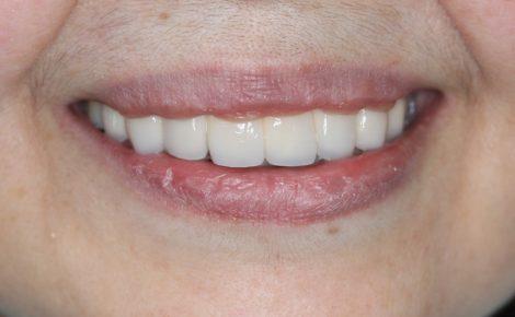 前歯2本入れ歯