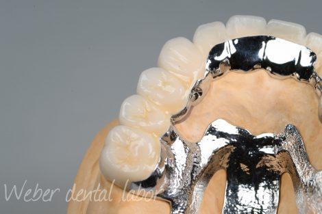 ドイツ式入れ歯リーゲルテレスコープ義歯